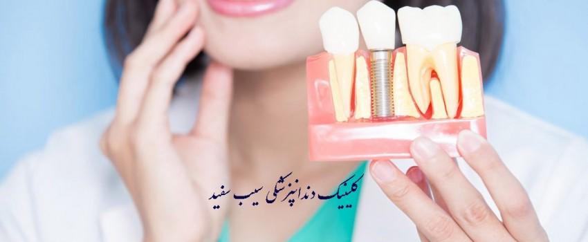 آیا ایمپلنت دندان ایمن هست