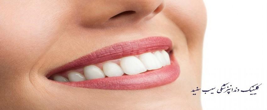 لمینت دندان برای دندان های پوسیده