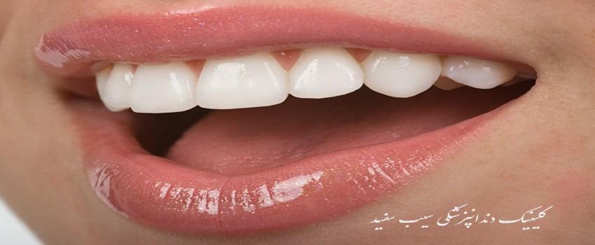 آیا کامپوزیت دندان به دندان های طبیعی آسیب می زند