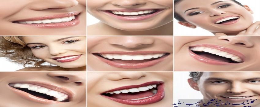 چه تعداد از دندان ها باید کامپوزیت شوند