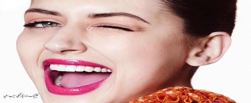 مزایا و معایب کامپوزیت دندان