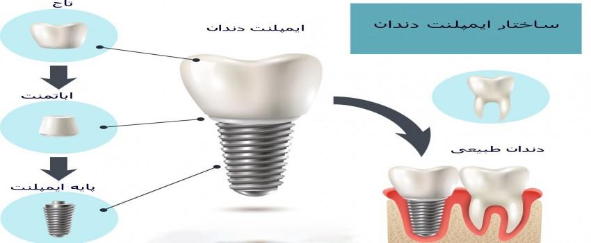 ساختار ایمپلنت دندان