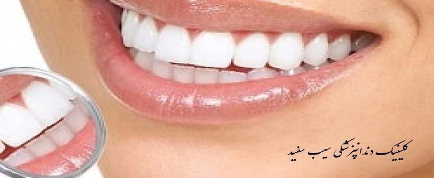 آیا دندان های فک پایین نیز باید کامپوزیت شوند
