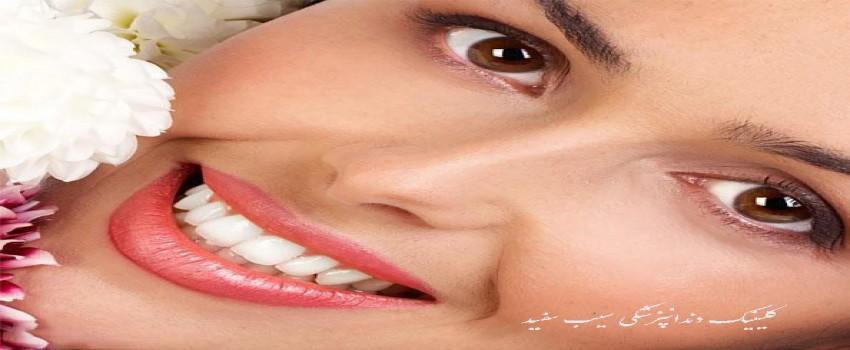 فیلم انجام کامپوزیت دندان به روشی جدید