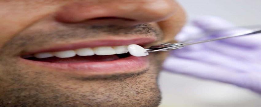 فیلم روکش دندان