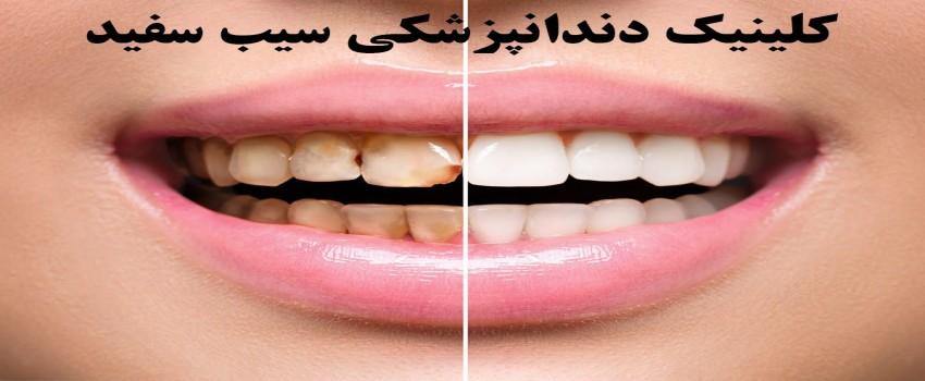 انواع مختلف لمینت دندان