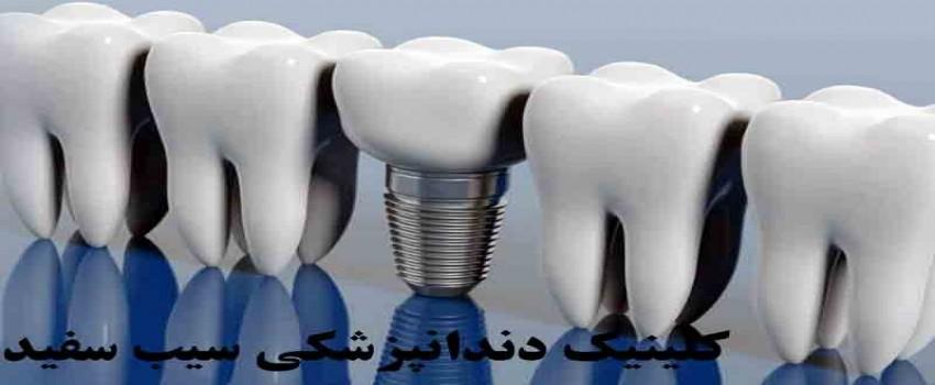 تمام آنچه شما باید درباره ایمپلنت دندان بدانید