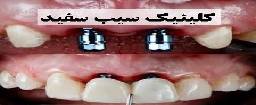 هزینه ایمپلنت دندان در ایران