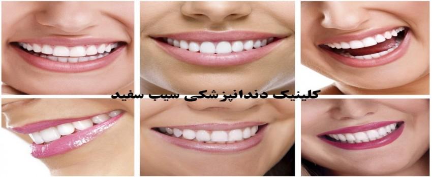 تفاوت لمینت دندان با روکش دندان