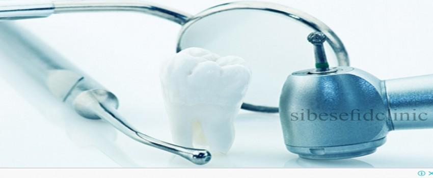 آيا کامپوزيت ونیر می تواند باعث بروز مشکلات دندانی مثل پوسيدگی شود؟