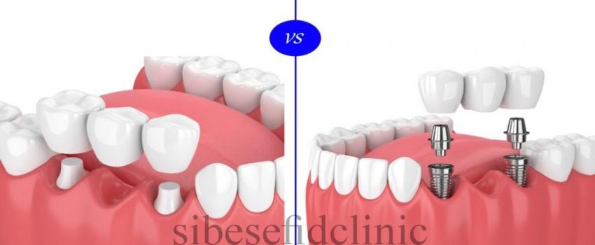 بریج دندان و مزایای آن