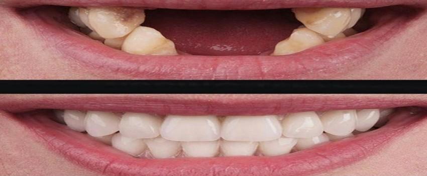مراقبت های بعد از انجام ایمپلنت دندان