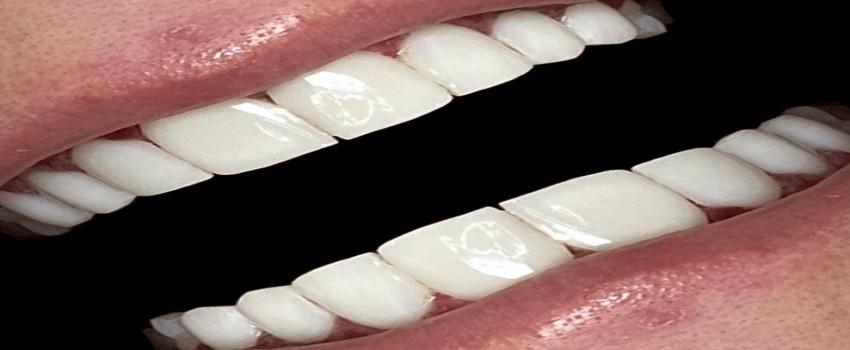 ضخامت کامپوزیت دندان