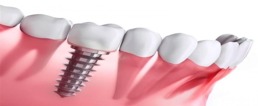 علت تفاوت قیمت در ایمپلنت دندان