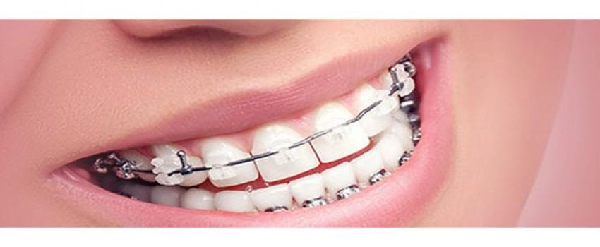 آیا دندان پر شده را میتوان ارتودنسی کرد؟