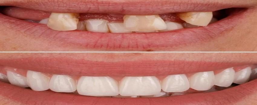 در چه مواردی از ایمپلنت کاشت دندان استفاده می شود؟