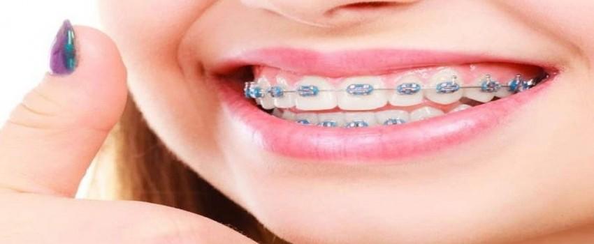آیا بدون ارتودنسی میتوان دندان ها را مرتب کرد؟