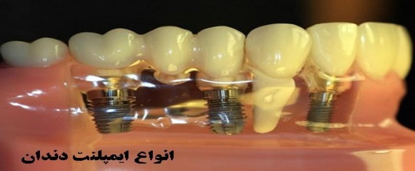 فرآیند جراحی و کاشت ایمپلنت دندانها به چه صورت است؟