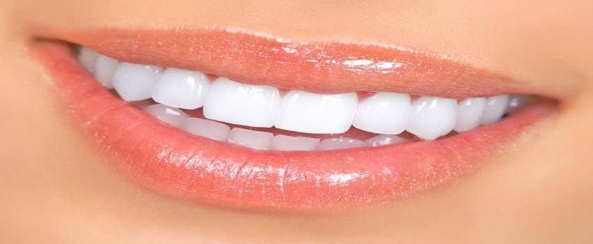 لمینت سرامیکی دندان چیست؟