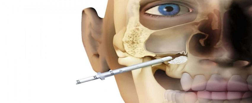 سینوس لیفت یا جراحی بالابردن سینوس چیست؟