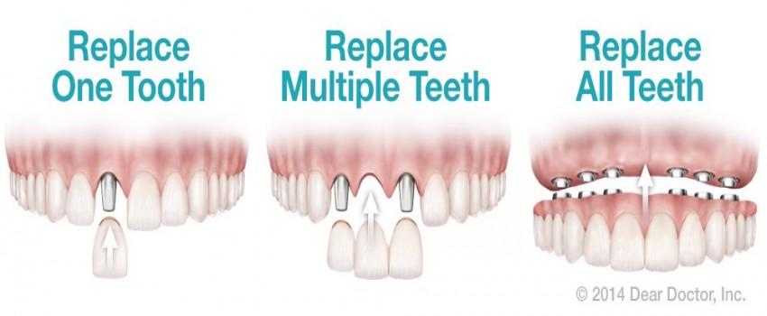 ایمپلنت، همه چیز در مورد ایمپلنت دندان